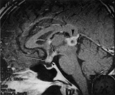 Gadolinium-enhanced MRI of a 33-year-old woman who