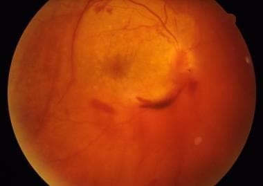 Vitreous hemorrhage. Courtesy of UT Southwestern M