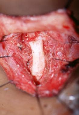 Cartilage graft in place over the wound. Note exte