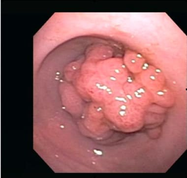 Hamartomatous polyp, as seen in the stomach. (Endo