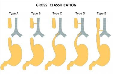 Esophageal atresia classification according to Gro