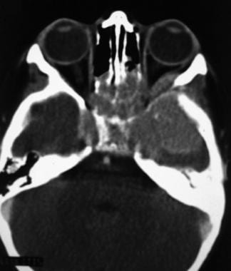 Axial CT scan through the orbits and ethmoid sinus