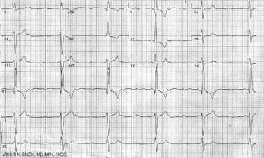 Complete heart block as seen in a patient with neo