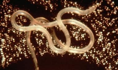Adult Loa loa worm. Courtesy of Flickr [NIAID/NIH]