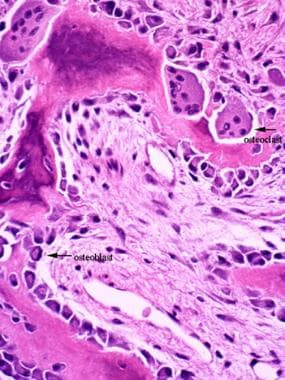 Histology Of Bone Background Gross Structure Of Long Bone Nerves And Vasculature Of Bone