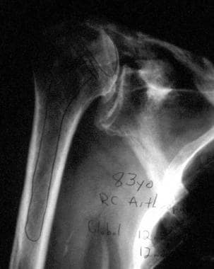 Radiograph demonstrating superior migration of the
