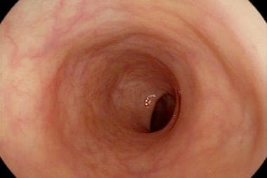 Sigmoid colon as shown by flexible sigmoidoscopy.