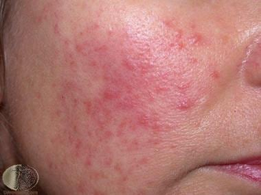 Mild papules and erythema. Courtesy of DermNet New