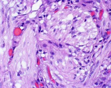 duke mbs histology