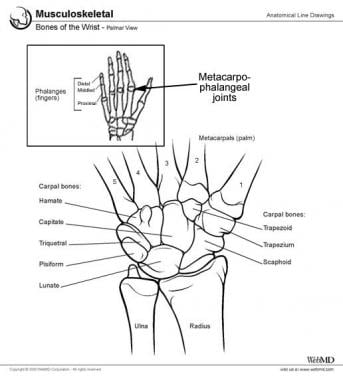 Metacarpophalangeal joint.