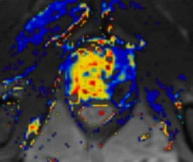 Dynamic contrast-enhanced MRI scan in a patient wi