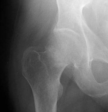Radiograph demonstrating a Garden I hip fracture.