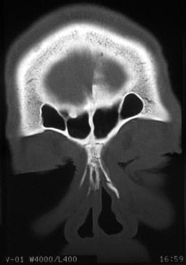 Nasal fractures. Coronal CT scan demonstrates a na