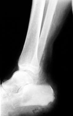 Osteomyelitis, chronic. Image in a 56-year-old man