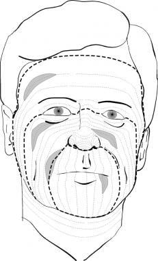 Incision Placement: Overview, Concepts, Incision Technique