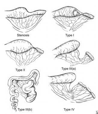 Classification of jejunoileal atresias.