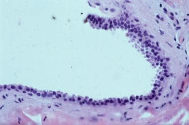 Histology of apocrine hidrocystoma. Cystic spaces