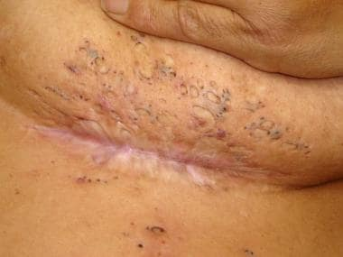 Double-ended-comedones. Hidradenitis suppurativa i