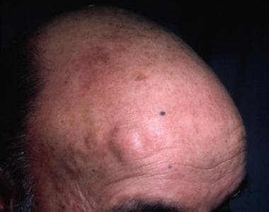Solitary nodule on the frontal part of the scalp.