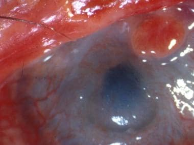 A patient with severe eye involvement associated w