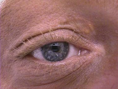 Close-up view of recurrent xanthelasma right upper