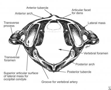Transverse ligament holds dens against anterior ar