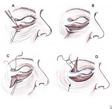 Hamra's lateral orbicularis suspension.