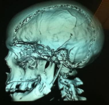 Three-dimensional reconstruction CT scan.