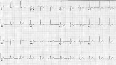 Pain-free ECG of a 57-year-old patient who present