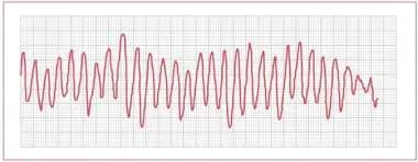 Bidirectional tachycardia in a patient with digita