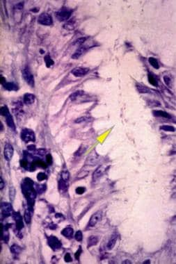 An antral gland of the stomach with a large Giemsa