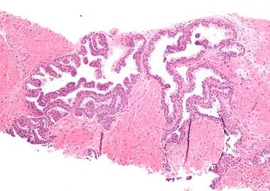 Prostate cancer. Micrograph of high-grade prostati
