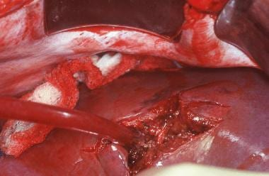 This liver injury was sustained by the patient sho