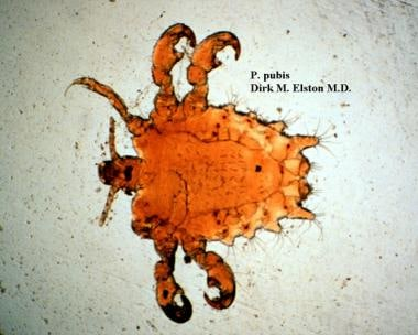 The pubic louse, Pthirus pubis, is identified by i