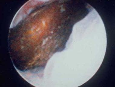 Distal ureteral stone observed through a small, ri