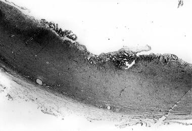 Photomicrograph shows the cyst wall, with inflamma