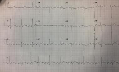 Twelve-lead ECG showing atrial flutter with variab