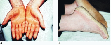 Palmoplantar keratoderma (Tylosis) of palms (A) an