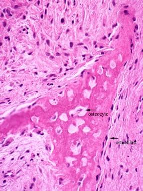 Histology of Bone: Background, Gross Structure of Long ...
