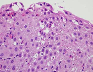 Eosinophil degranulation