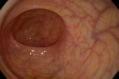 Rectum as shown by flexible sigmoidoscopy.