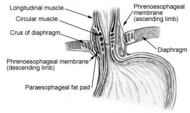 Lower esophageal sphincter.