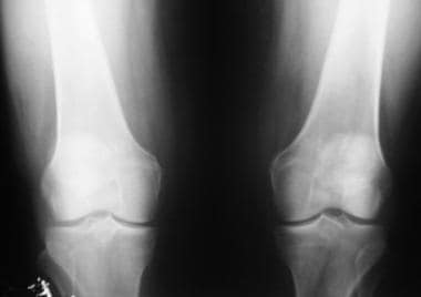 Osteoarthritis of the bilateral knees, Kellgren-La