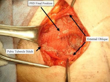 Open inguinal hernia repair. Final position of Pro