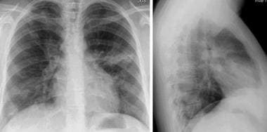 Chest radiography in Churg-Strauss syndrome (CSS)