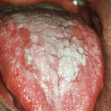 Ulcerative oral lichen planus on the dorsum of the