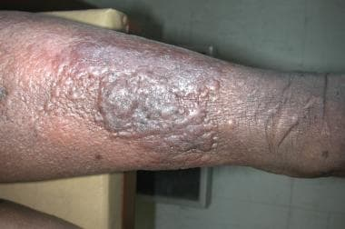 Lymphedema in a patient with hypertension, diabete