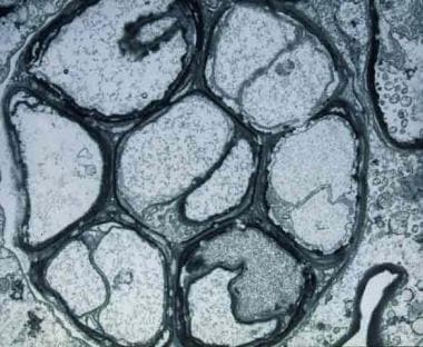 Electron photomicrograph of Prototheca wickerhamii