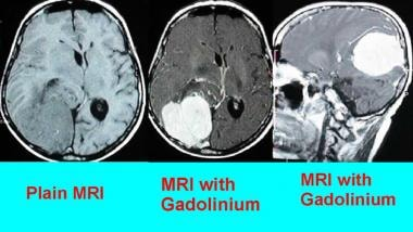 This is an extra-axial tumor. Glioblastoma multifo