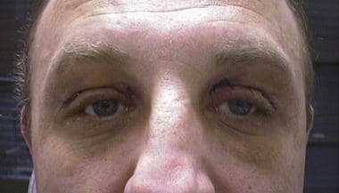Xanthelasma. External view, 1 week after surgery.